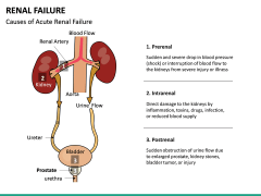 Renal Failure PPT Slide 19